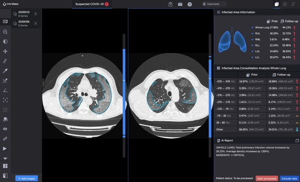 InferRead CT Pneumonia™ compares the progress of infection and quantifies changes over time